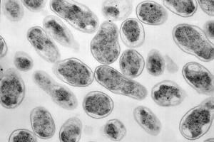 Бактерии бруцеллеза